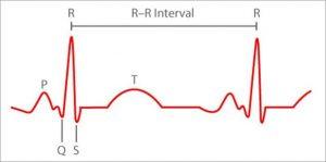 Battement de coeur ECG